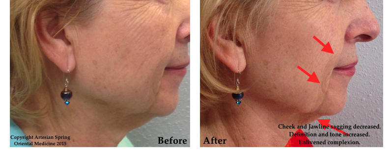 Cheek and jawline sagging decreased. Definition and tone increased. Enlivened complexion.