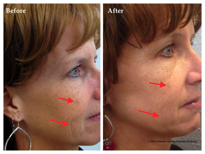 Reducing the look of lines and evening out the look of blemishes.