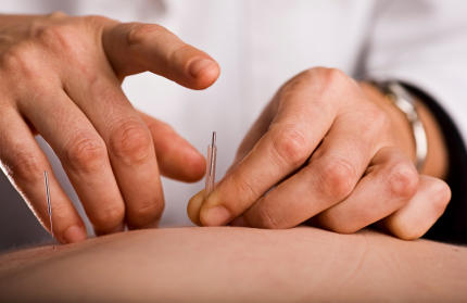 the difference between acupuncture & dry needling