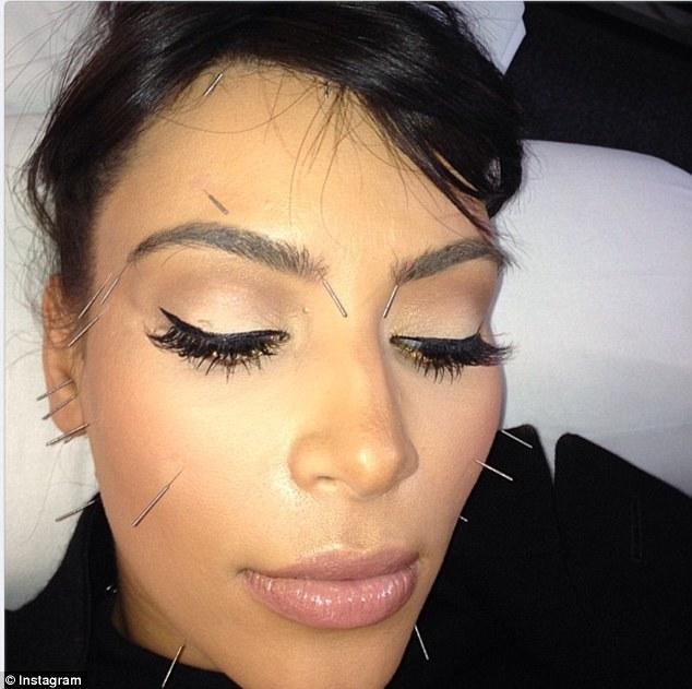 Kim Kardashian Cosmetic Acupuncture