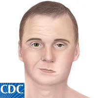 Bell's Palsy CDC
