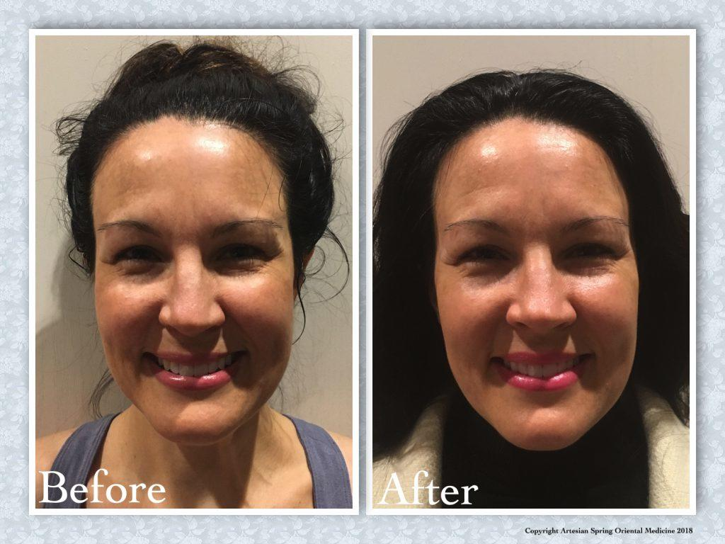 Overall skin tone is healthier, brighter, and lighter.