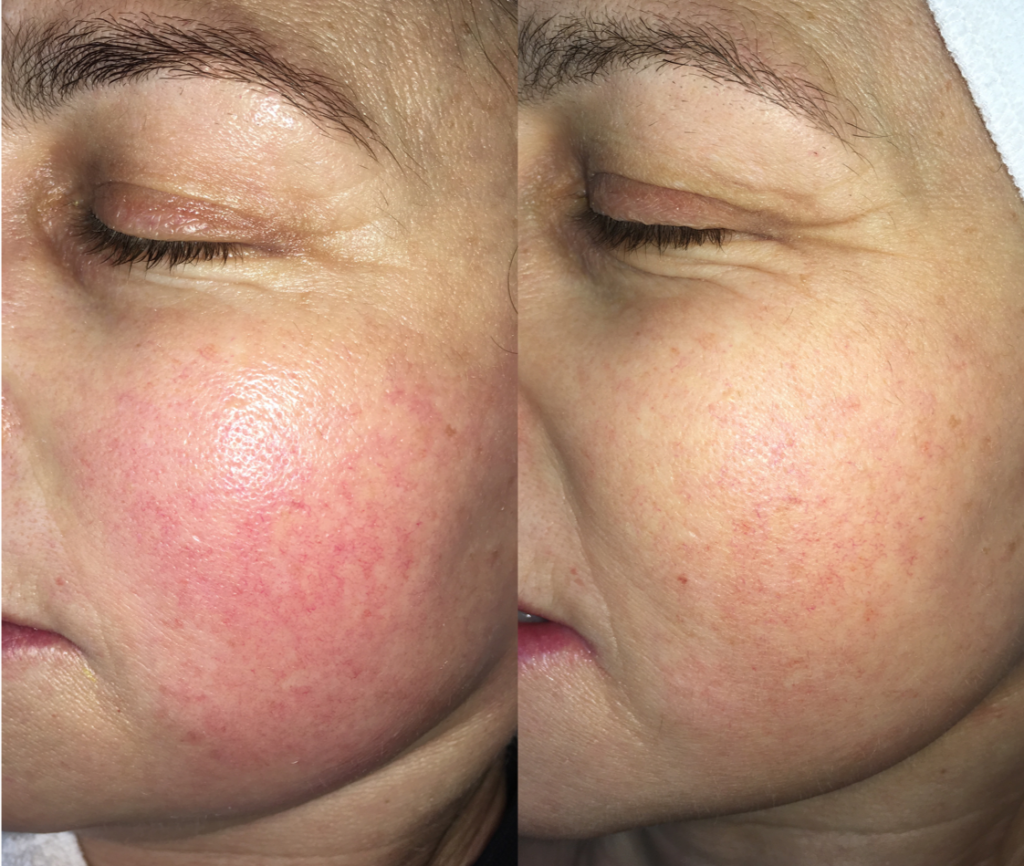 Before and After ProCell Treatment of Rosacea