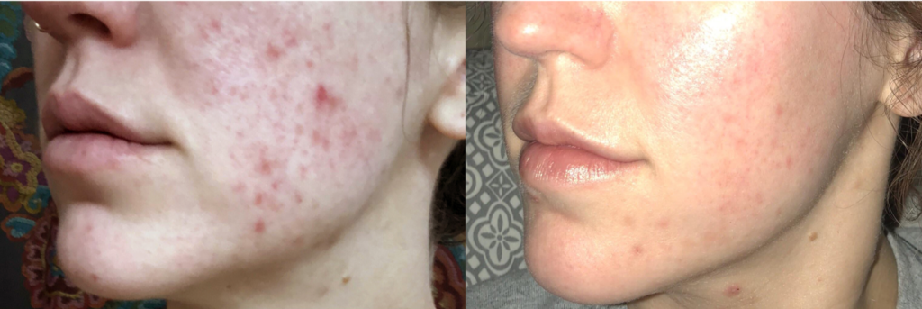 Microneedling Fort Collins - Before and After ProCell Acne Treatment