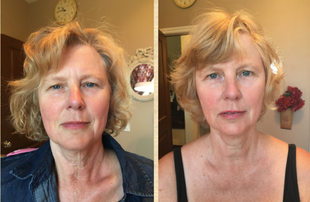 Microneedling Fort Collins - Before and After ProCell Neck and Face