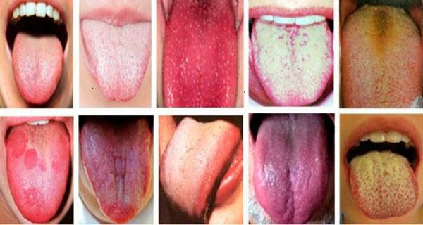 tongue photos